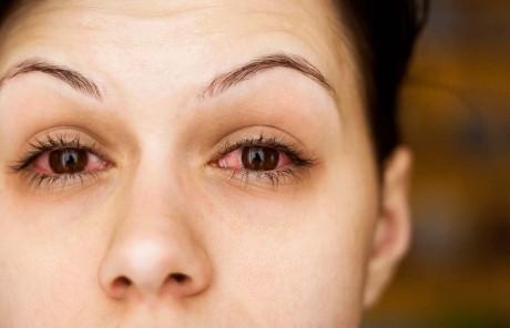 Medicul oftalmolog îţi spune cum poţi preveni alergiile de sezon