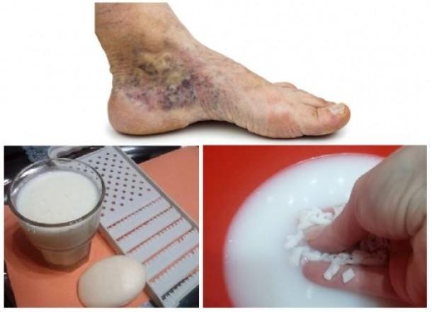 cum pot scăpa de varicele de pe picioare